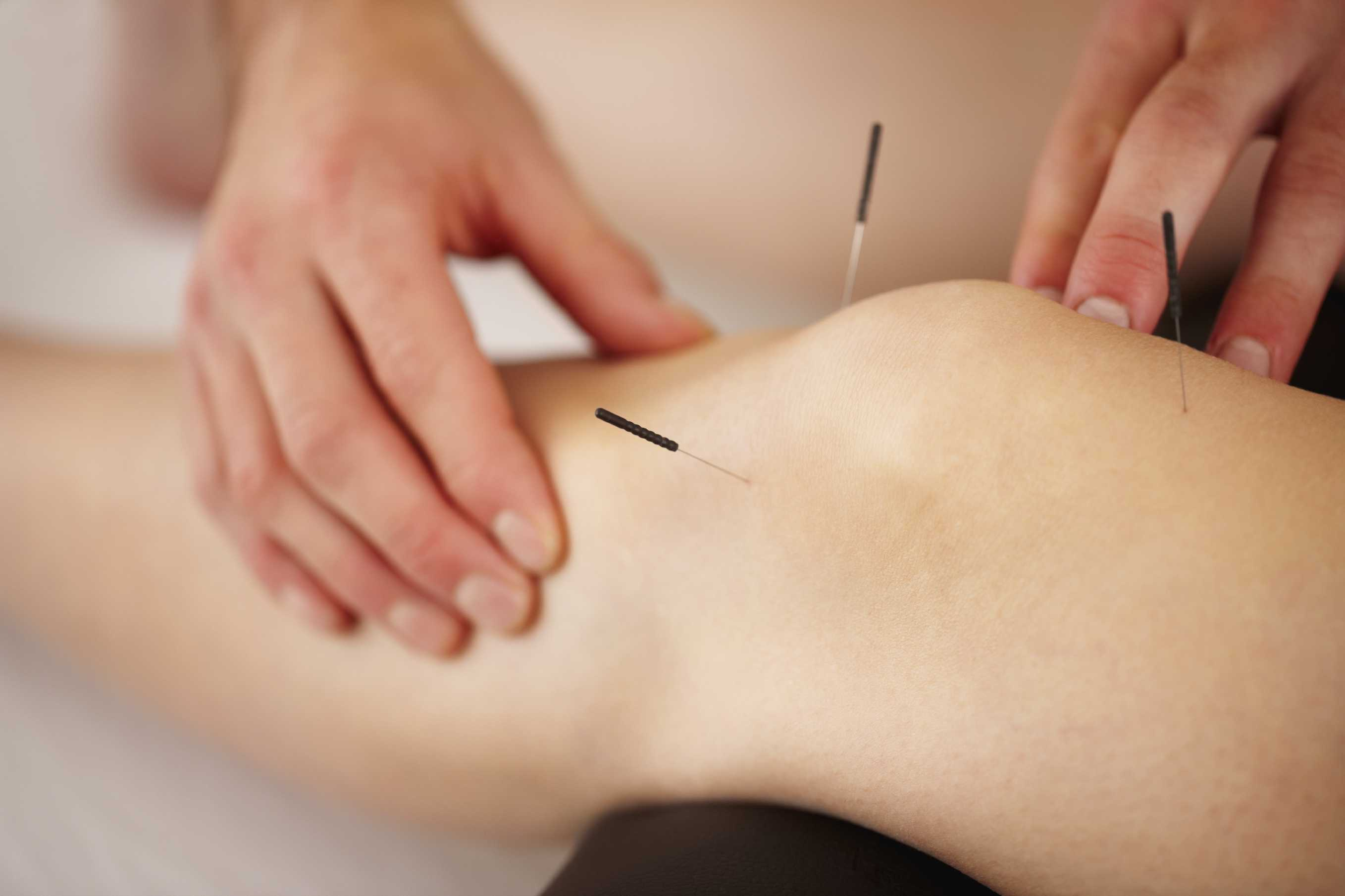 Accupuncture being done on the knee